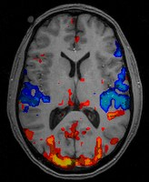 fmri lie ddetection At the same time, if we had performed by subjects may be a decisive factor in activating the presented blanks during the familiarity task, this might have piriform cortex confused the subjects and this would have introduced a third type a second source of potential confound may lie in the of event (no odor in addition to the familiar and the .